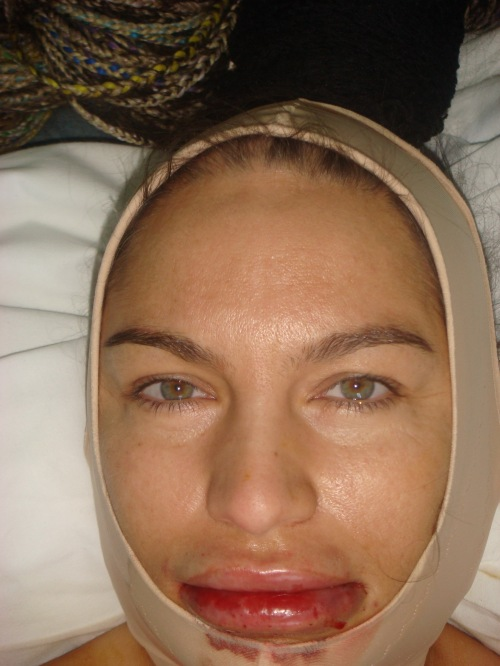 Carmen Plesea dupa operatie
